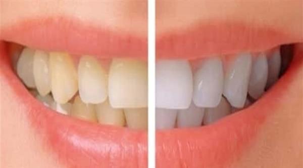 تبييض الأسنان .. مزايا ومخاطر
