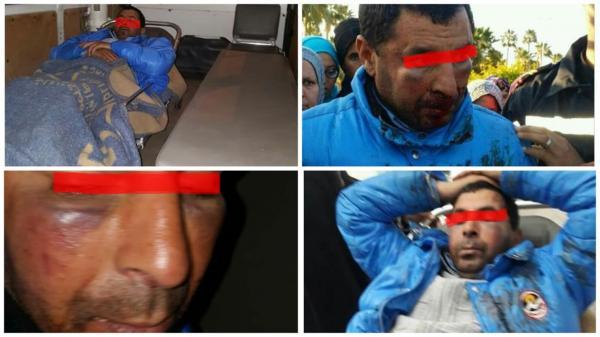 بالفيديو... شرطي يعنف شاب مضطرب نفسي بالشارع والساكنة تحتج أمام مفوضية الشرطة
