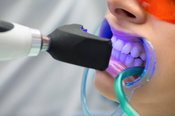 انتبهي...تبييض الأسنان قد يسبب لك مشاكل لكبيرة
