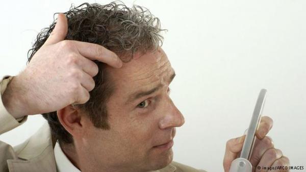 لهذا السبب تساقط الشعر يكون شديدا في الشتاء