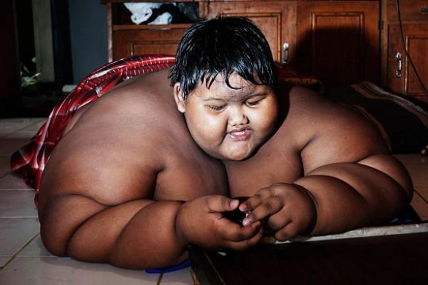 أثقل طفل في العالم يستعيد رشاقته ويفقد 115 كيلو من وزنه