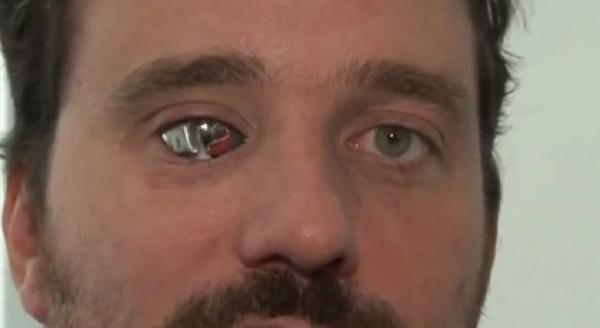 بعد فقدان إحدى عينيه .. يحولها إلى كاميرا فيديو بهدف تصوير فيديوهاته الخاصة