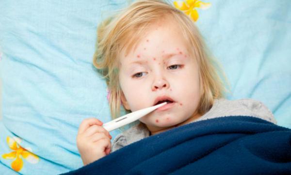 أوكرانيا :وفاة شخصين وإصابة أزيد من 3000 آخرين بسبب مرض الحصبة