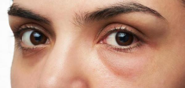 قبل العيد: تعرفي على وصفات طبيعية وسريعة المفعول للتخلص من انتفاخات العين