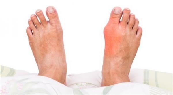 ما هي الفئات الأكثر عُرضة  للإصابة بالنقرس؟