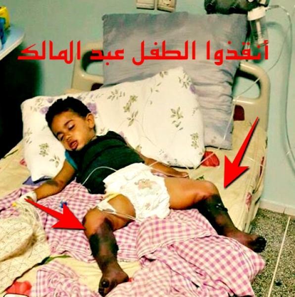 """مرض نادر يباغت الطفل """" عبد المالك """" و والديه يناشدان """"الوردي"""""""