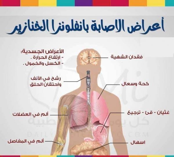أعراض أنفلونزا الخنازير