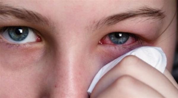 حساسية العين للضوء تستلزم استشارة الطبيب فوراً