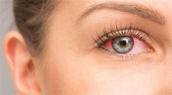 احمرار العين تنذر بالتهاب الملتحمة