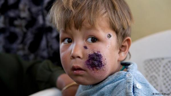 ما هي الأمراض الخطيرة التي قد تنقلها لسعة البعوض؟