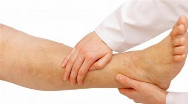 آلام الساق تنذر بهذا المرض الخطير