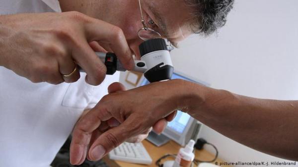 ثمانية تغيرات على جلدك تنبئك بأمراض في الكبد والأمعاء