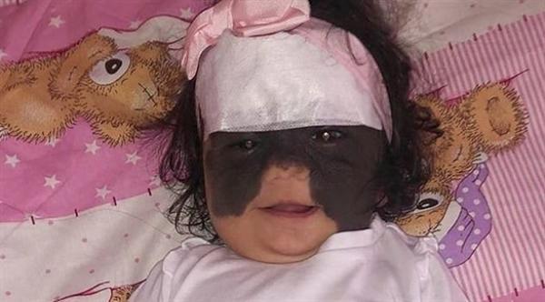"طفلة تولد بقناع شبيه ب""باتمان"" على وجهها"