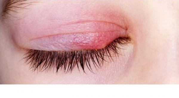هذه 4 حلول للتخلص من تورم جفن العين