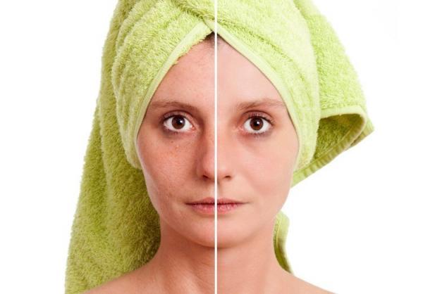 طريقة التغلب على الندوب والحفر الظاهرة في الوجه