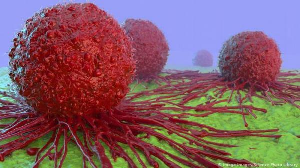 خبراء يتوقعون أن يؤثر كوفيد 19 سلبا على رعاية مرضى السرطان