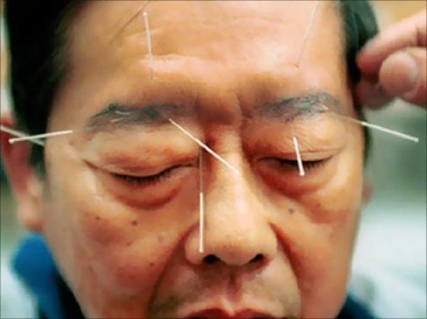 الصين تستعد لإحداث مركز للطب التقليدي بالدار البيضاء
