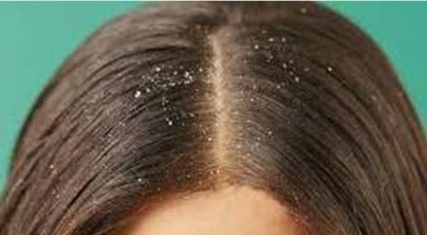 تعرفي على أسرع وأقوى علاج لقشرة الشعر نهائيا
