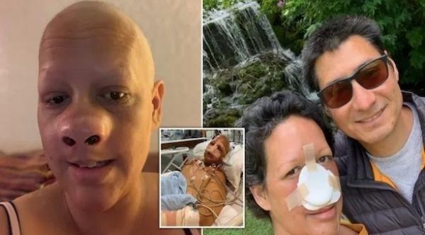 بريطانية تفقد أنفها بالكامل بعد اكتشافها بالصدفة الإصابة بالسرطان