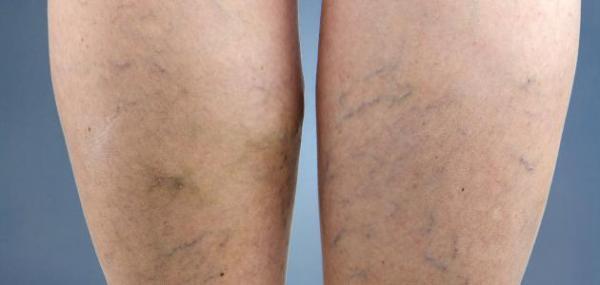 تعرفي على أسباب وأعراض وعلاج ظهور الأوعية الدموية في القدمين