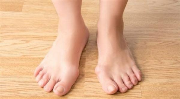 تشوهات القدم...أنواعها وأسبابها
