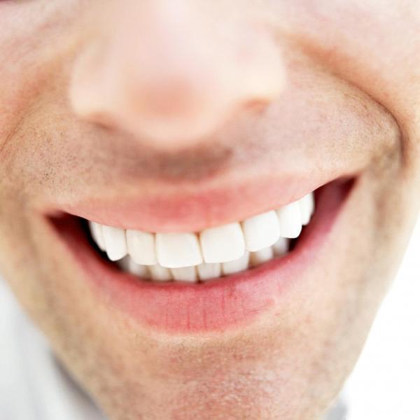 عادات يجب أن تحافظ عليها لضمان بياض أسنانك
