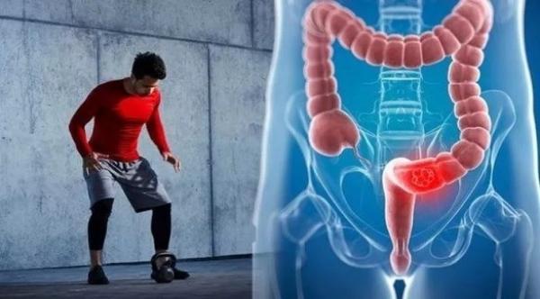 تمرين رياضي مهم يساهم في علاج سرطان القولون