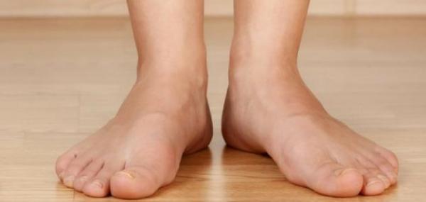 إجراءات عملية  للتخلص من انتفاخ القدمين