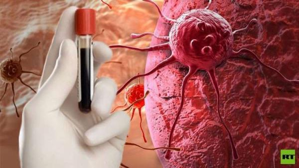 علماء روس يتوصلون الى دواء يرفع فعالية علاج السرطان