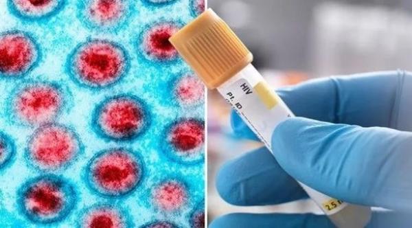 لأول مرة ...شفاء أحد مرضى الإيدز في البرازيل باستخدام العقاقير الطبية فقط