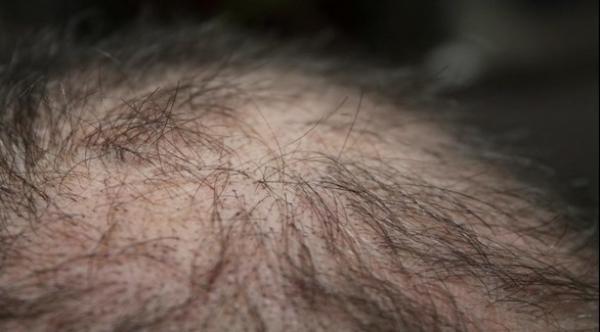 عقار جديد يساعد على نمو الشعر المتساقط نتيجة العلاج الإشعاعي