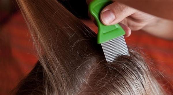 طرق و إجراءات منزلية لحكّة فروة الرأس