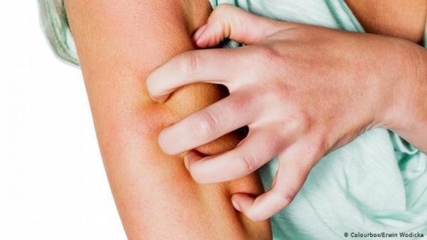 """تحذير من """"كوفيد-19"""": هذا الألم في الجلد لا ينبغي تجاهله"""
