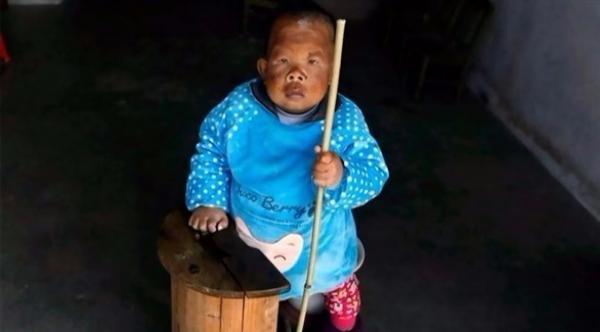 ثلاثيني يعيش بجسد طفل بعمر عامين بسبب حالة نادرة