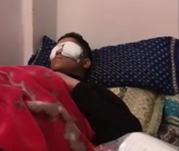انفجار بطارية هاتف في وجه تلميذ يتابع دراسته عن بعد ووزارة أمزازي تدخل على الخط (فيديو)