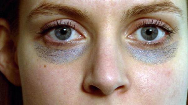 نصائح وطرق منزلية بسيطة للتخلص من انتفاخ أسفل العين ظاهرة
