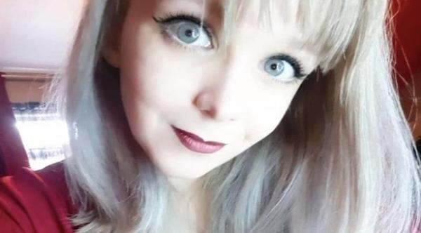نجاح عملية جراحة رائدة في الحؤول دون انفصال رأس شابة بريطانية عن جسدها