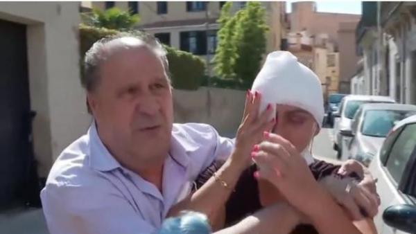 """الاسبانية التي تعرضت للحرق من طرف مغربي """"قال أنه سيفعل ذلك، وأخبرني أنه لم ينته بعد"""" (فيديو)"""