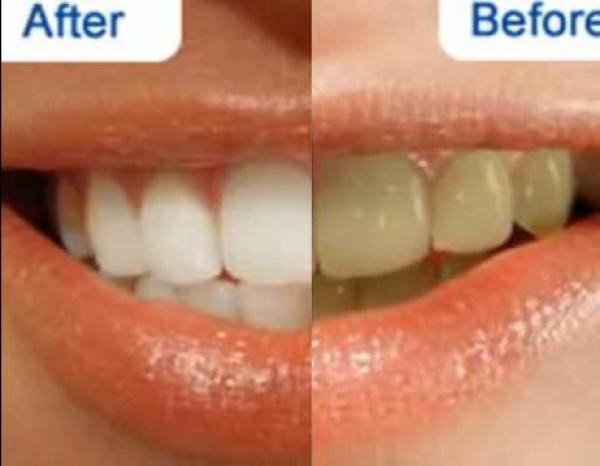 b2001bc11 أفضل طريقة لتبيض الأسنان وتنظيف اللثة بدون الذهاب إلى الطبيب
