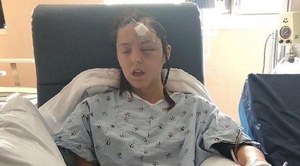 امرأة تخضع لعملية جراحية لإزالة ورم سرطاني من الدماغ دون تخدير