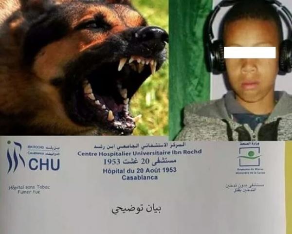 وزارة الصحة تتكفل بمصاريف علاج الطفل الذي نهشته الكلاب الضالة و هذه حالته الصحية