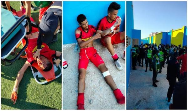 مستجدات واقعة الاعتداء الشنيع على لاعبي الاتحاد القاسمي في الداخلة