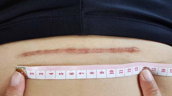 6 نصائح للاعتناء بجرح الولادة القيصرية