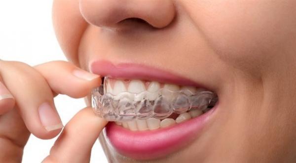 كيف تعالج تخلخل الأسنان لدى الكبار؟