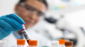 اختبار دم يمكن من اكتشاف أكثر من 50 نوعًا من السرطان