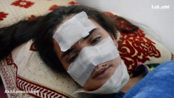 شابة تطوانية تستنجد بالدكتور التازي والمحسنين بعد تشوه وجهها في حادثة سير