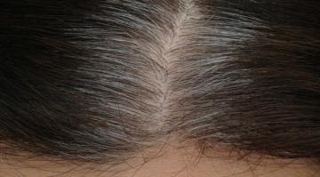 أسباب تساهم في فقدان لون الشعر في سن مبكرة