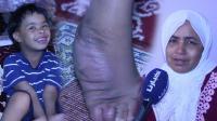 """لأصحاب القلوب الرحيمة..شاهد كيف يعيش الطفل """"زكرياء"""" بسبب معاناته من تشوه في رجله (فيديو)"""