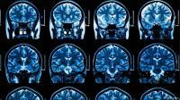 اختراع ثوري: خوذة مغناطيسية لعلاج ورم الدماغ